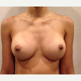 18-24 year old woman treated with Breast Augmentation after 2293033