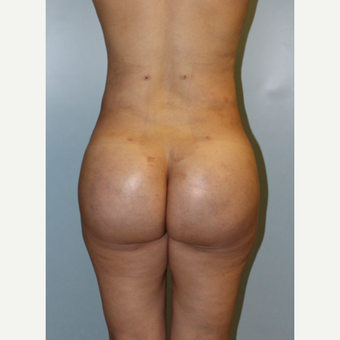 25-34 year old woman treated with Brazilian Butt Lift after 3768755