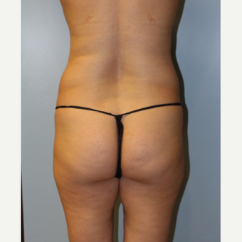 25-34 year old woman treated with Brazilian Butt Lift before 3768755