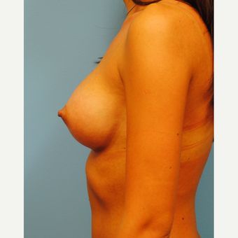 23 year old woman: Breast Augmentation, going from A to full C cup using 350 cc HP silicone after 3219979