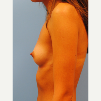 23 year old woman: Breast Augmentation, going from A to full C cup using 350 cc HP silicone before 3219979