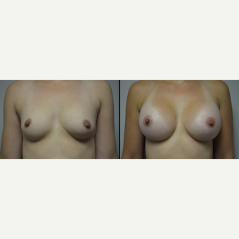 25-34 year old woman treated with Breast Implants before 3836983