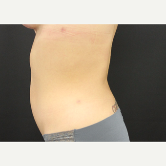 25-34 year old woman treated with Liposuction after 3099571