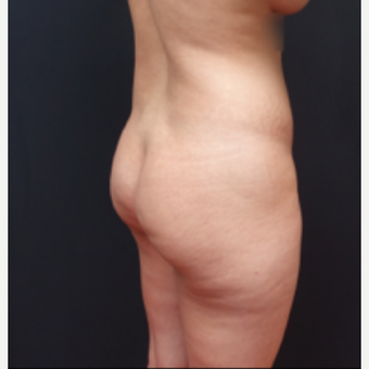 25-34 year old woman treated with Butt Augmentation before 3267012