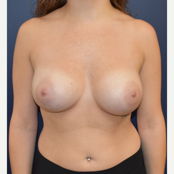 25-34 year old woman treated with Breast Implants after 3213926