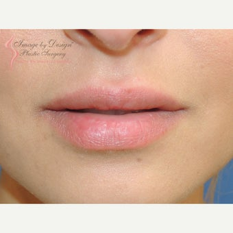 18-24 year old woman treated with Lip Augmentation