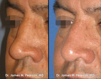 Revision Rhinoplasty / Nasal Surgery after 920407