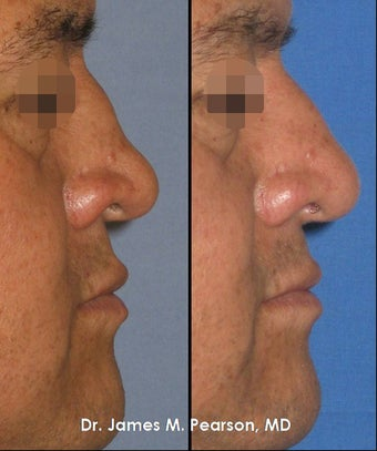 Revision Rhinoplasty / Nasal Surgery before 920407