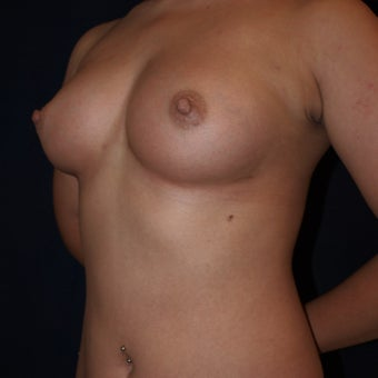 26 year old woman treated with Breast Fat Transfers after 1607636