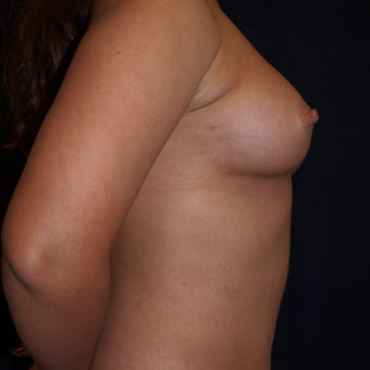 26 year old woman treated with Breast Fat Transfers 1607636