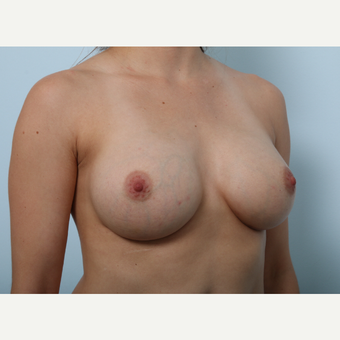 Breast Augmentation after 3345339