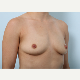 Breast Augmentation before 3345339