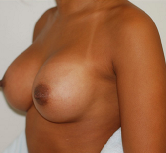 25-34 year old woman treated with Breast Augmentation after 3549851