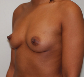 25-34 year old woman treated with Breast Augmentation before 3549851