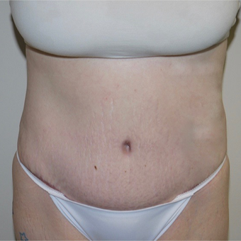 25-34 year old woman treated with Tummy Tuck after 3062470