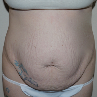 25-34 year old woman treated with Tummy Tuck before 3062470
