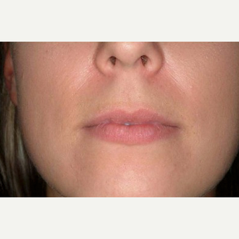 25-34 year old woman treated with Lip Implants before 1652256