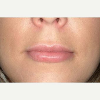 25-34 year old woman treated with Lip Implants after 1652256