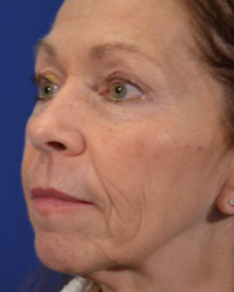 63 year old woman post Facelift before 3744005
