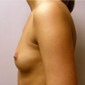 Breast Augmentation before 3680721