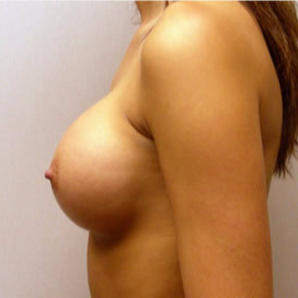 Breast Augmentation after 3680721