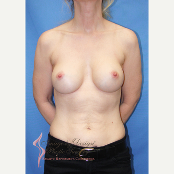 35-44 year old woman treated with Breast Implants after 3095109