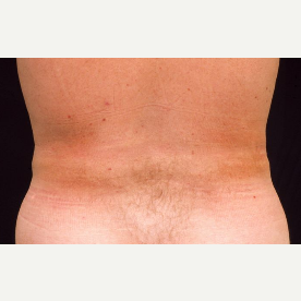 42 year old man treated with Liposuction after 3094589