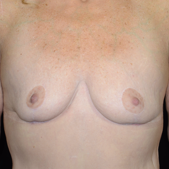 45-54 year old woman treated with Breast Reduction after 3810462