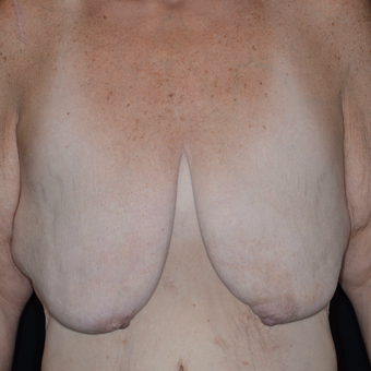 45-54 year old woman treated with Breast Reduction before 3810462