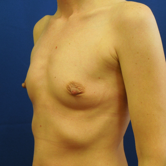 35-44 year old woman treated with Breast Implants before 3685687
