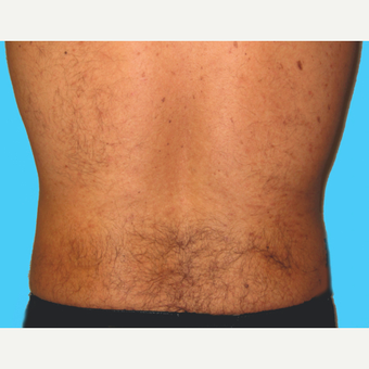 Liposuction after 3810575