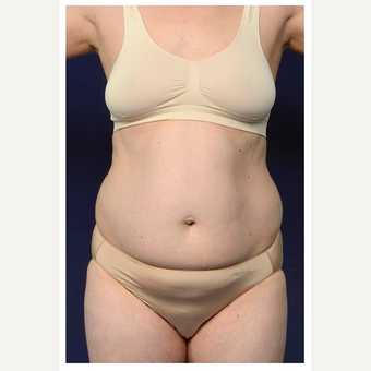 35-44 year old woman treated with Tummy Tuck before 3174253