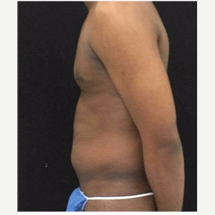 25-34 year old man treated with Liposuction before 3046684