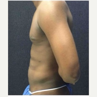 25-34 year old man treated with Liposuction after 3046684
