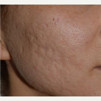 25-34 year old woman treated with Acne Scars Treatment before 3642144