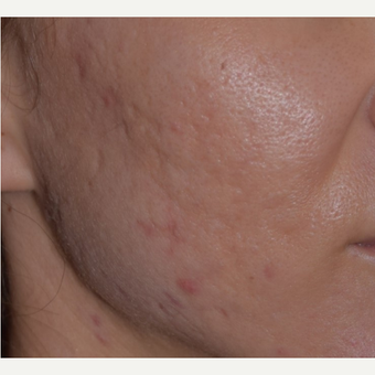 25-34 year old woman treated with Acne Scars Treatment after 3642144