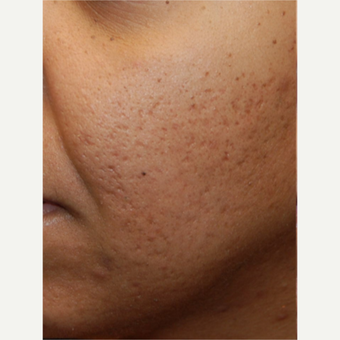 35-44 year old woman treated with Silikon 1000 for cheek acne scarring.