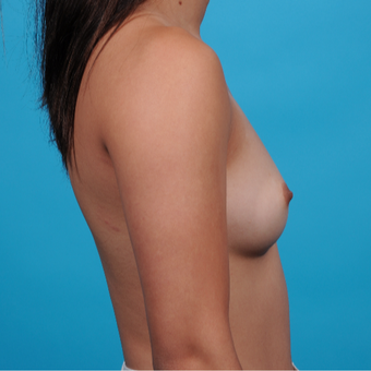 18-24 year old woman treated with Breast Augmentation before 3789293