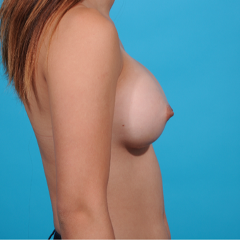 18-24 year old woman treated with Breast Augmentation after 3789293