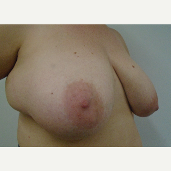 25-34 year old woman treated with Breast Reduction before 3833057