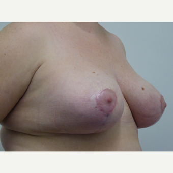 25-34 year old woman treated with Breast Reduction after 3833057