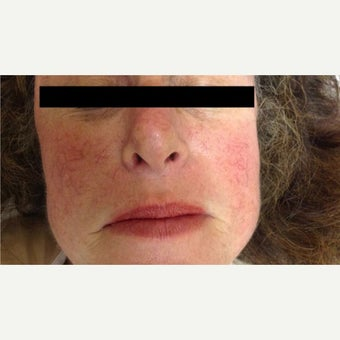 Treatment of Facial Spider Veins