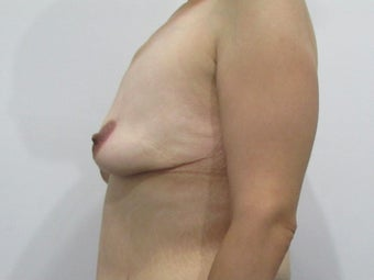 34 year old woman treated with Breast Lift before 2550331