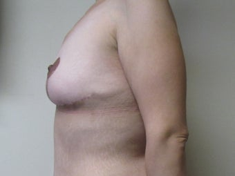 34 year old woman treated with Breast Lift after 2550331