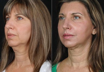 female lazerlift patient after 1357157