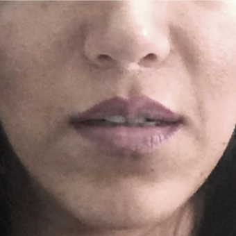 35-44 year old woman treated with Lip Lift after 3006133