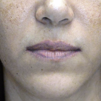 35-44 year old woman treated with Lip Lift before 3006133
