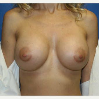 35-44 year old woman treated with Implant Exchange:  Saline to Silicone after 3788634