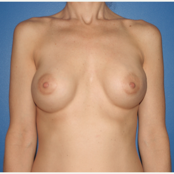 35-44 year old woman treated with Implant Exchange:  Saline to Silicone before 3788634