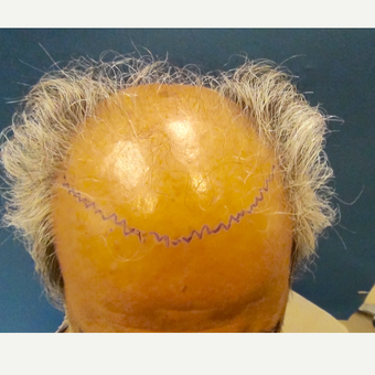 55-64 year old woman treated with Hair Transplant before 3130211